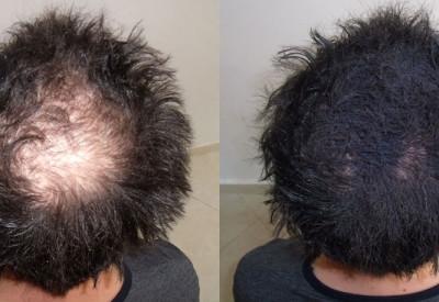 can-you-regrow-hair